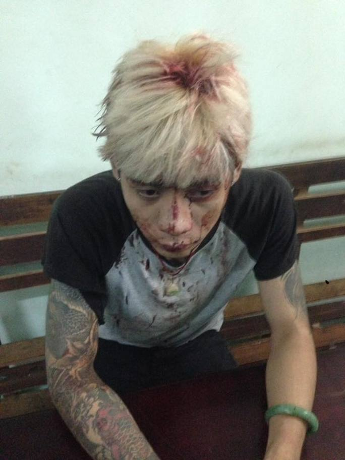 Anh Trần Đình Phan Nhật Duy với vết thương ở đầu (ảnh Facebook)