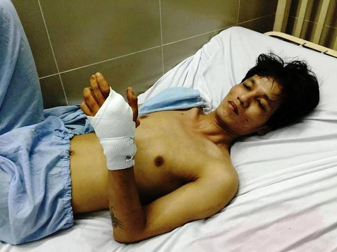 Anh Nguyễn Ngọc Lâm bị bắn thủng bàn tay trái đang điều trị tại bệnh viện
