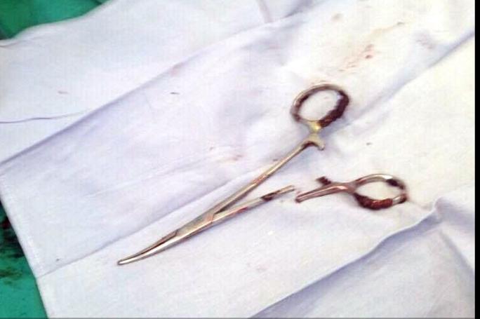 Chiếc kéo phẫu thuật bị bỏ quên trong bụng bệnh nhân suốt 18 năm sau khi được lấy ra - Ảnh: TTX