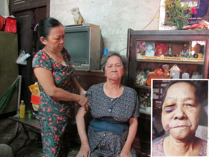 Bà Dương Kim Châu (ảnh lớn, bên phải) và vết bầm trên mặt do bị con đánh