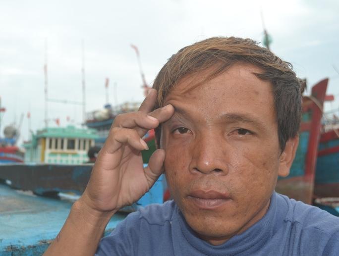 Một ngư dân bị phía Trung Quốc đánh bầm mắt