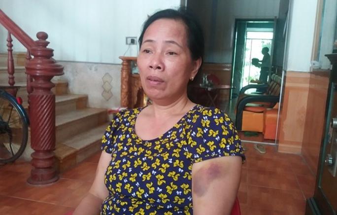 Bà Vũ Thị Đoan cho biết những vết thâm tím trên tay bà là do bị cưỡng chế điểm chỉ