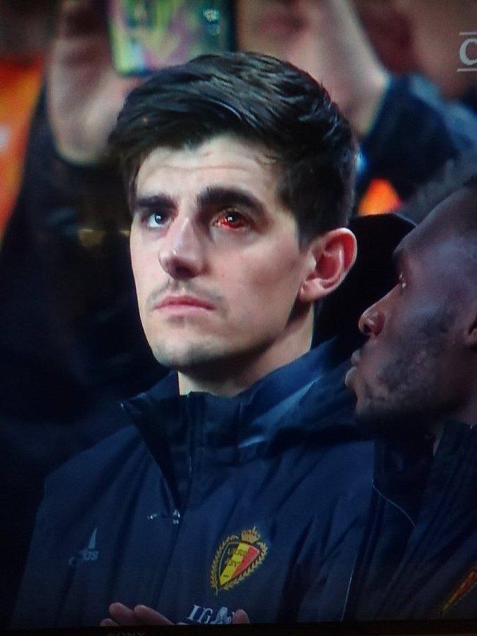 Thủ môn Courtois với mắt trái đỏ ngầu