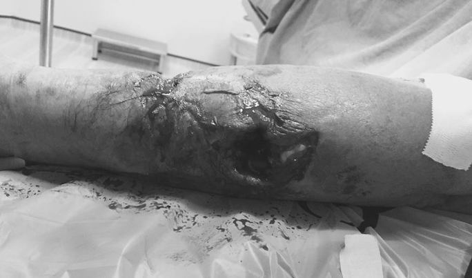 Bệnh nhân lớn tuổi bị chó cắn nát tay