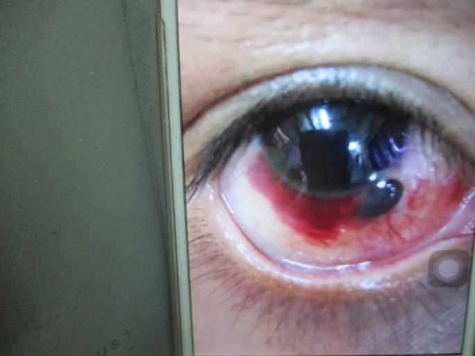 Mắt của anh Ph. bị tổn thương do mảnh vỡ ly bia đâm trúng