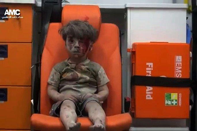 Bé Omran Daqneesh, 5 tuổi, được giải cứu trong một cuộc không kích hôm 17-8 ở TP Aleppo - Syria. Ảnh: Aleppo Media Center