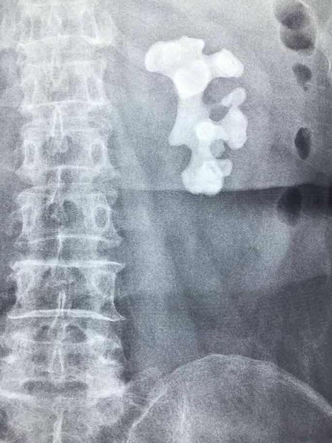 Viên sỏi thận khổng lồ như mảnh san hô dưới biển trong bụng bệnh nhân.