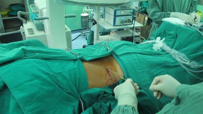 Bệnh nhân được tán và lấy được 98% sỏi qua da.