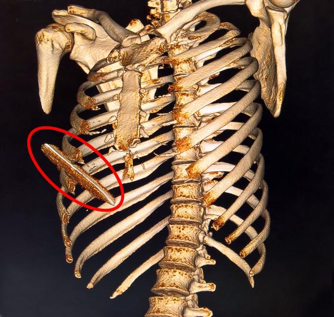 Dị vật xuyên thấu ngực, rách gan bệnh nhân.