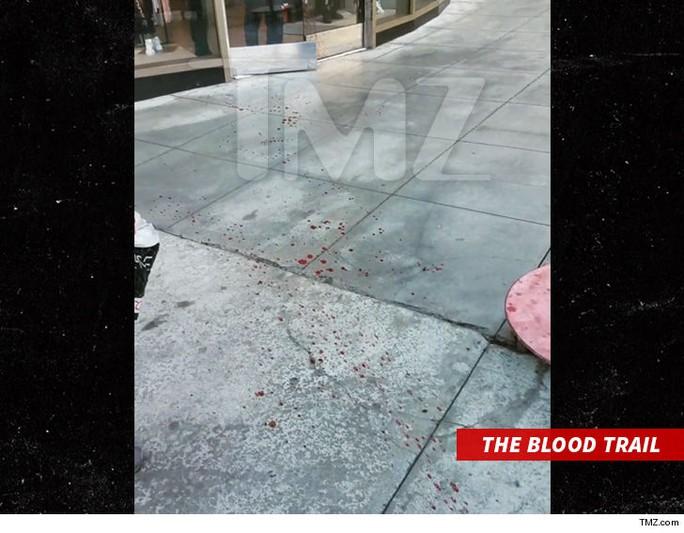 Nam ca sĩ nguy kịch vì bị bắn giữa phố - Ảnh 3.