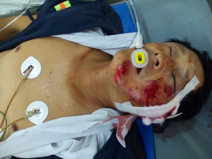 Ông Nam hiện đang bị hôn mê sâu tại Bệnh viện Đa khoa Trà Vinh