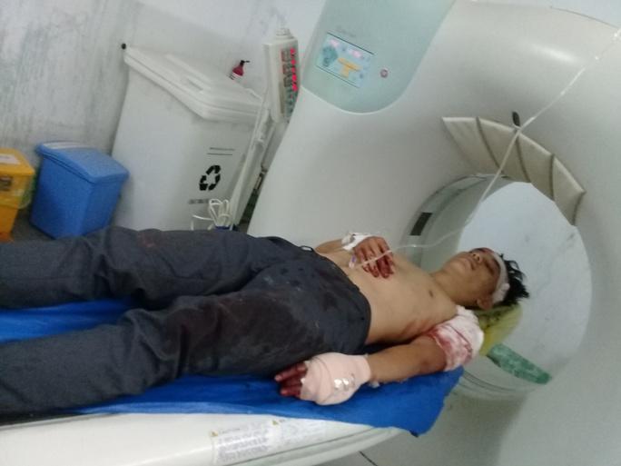 Bệnh nhân H. đang điều trị tại Bệnh viện Đa khoa Trà Vinh trong tình trạng bị thương rất nặng