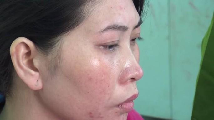 Vụ chặt đầu chồng: Người vợ không khóc nhưng nhiều lần ngất xỉu - Ảnh 3.