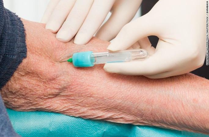 Chẩn đoán được Alzheimer nhờ… xét nghiệm máu - Ảnh 1.