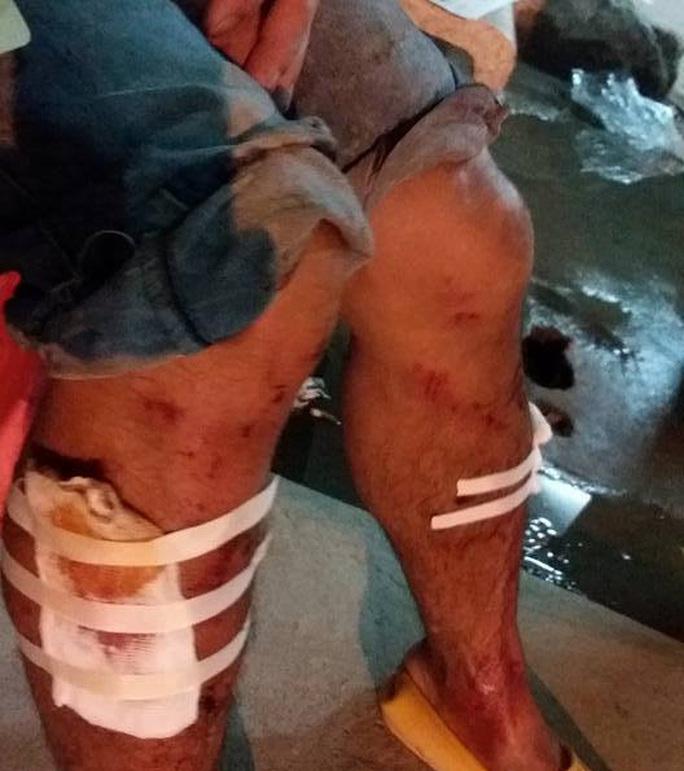 Một công nhân bị thương trong Bệnh viện 103
