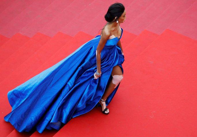 Người mẫu bạch biến tự tin khoe dáng tại Cannes 70 - Ảnh 5.