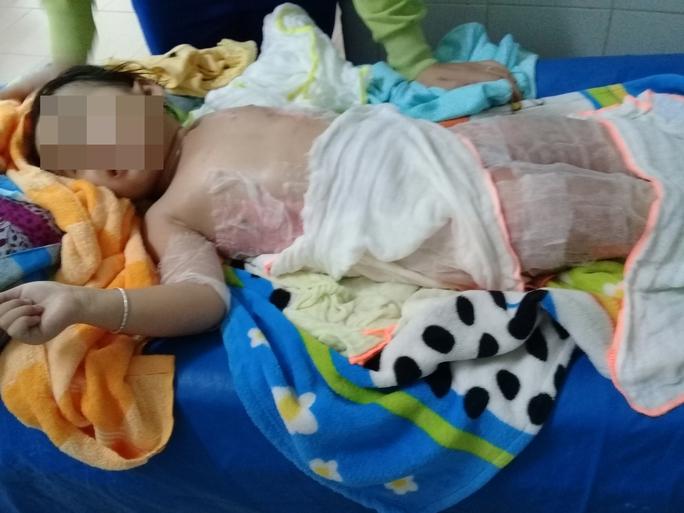 Dự tiệc nhà hàng, bé 3 tuổi bỏng nặng vì ngã vào nồi chè  - Ảnh 1.