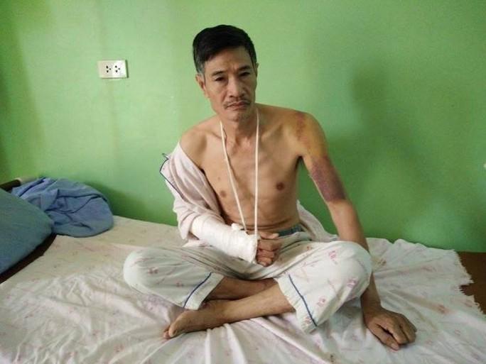 Bảo vệ cây trứng cá, 2 vợ chồng bị đánh nhập viện - Ảnh 2.