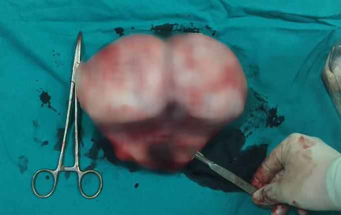 Thai phụ mang khối u tử cung to như quả bưởi - Ảnh 1.