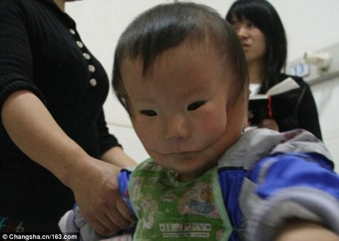 Bé Khang Khang có gương mặt biến dạng vì chứng bệnh lạ. Ảnh: Changsha