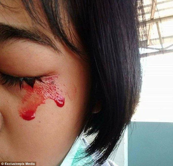 Bé gái chảy máu mắt, mũi, tai khi đau đầu - Ảnh 2.