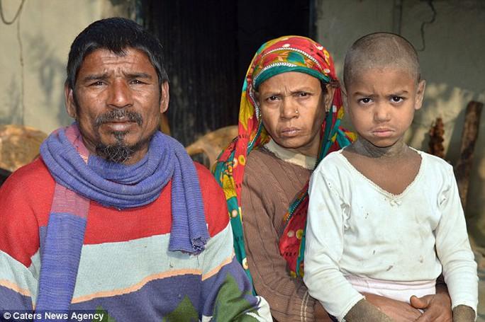Hassan và cha mẹ. Ảnh: CATERS NEWS AGENCY
