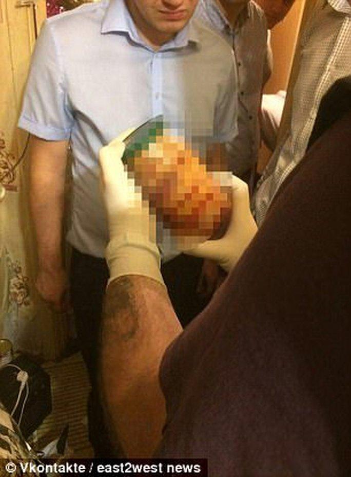 Nga: Tội ác rùng rợn đằng sau các cuộc hẹn hò - Ảnh 3.