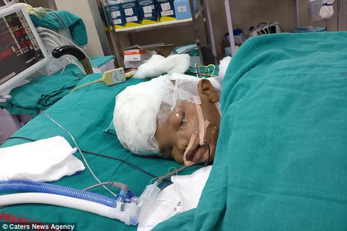 16 giờ phẫu thuật tách đôi 2 bé song sinh dính hộp sọ - Ảnh 3.