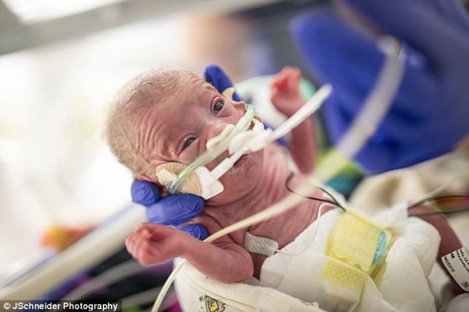 Bị sinh non trước 4 tháng, bé gái nhỏ như lon Coca - Ảnh 4.
