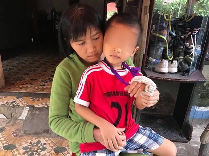 Giáo viên mầm non bị tố đánh trẻ 5 tuổi gãy ngón tay - Ảnh 1.