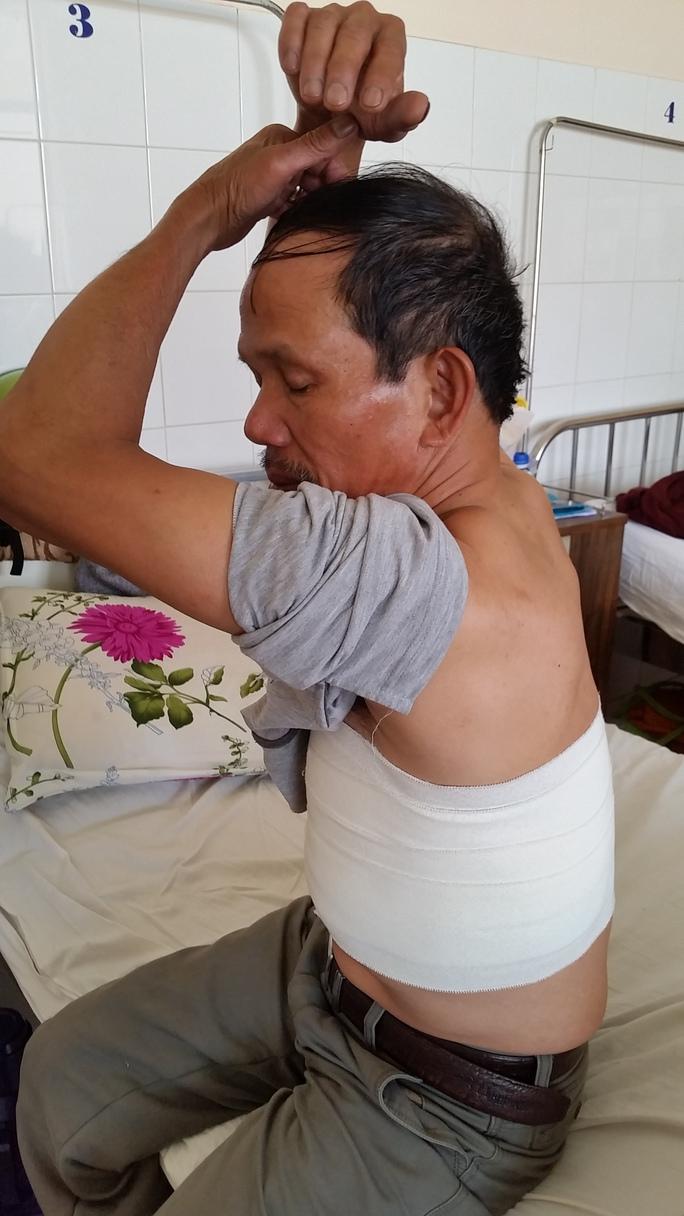 Sau khi bị tấn công, ông Thanh bị đa chấn thương, gãy răng và 4 xương sườn.