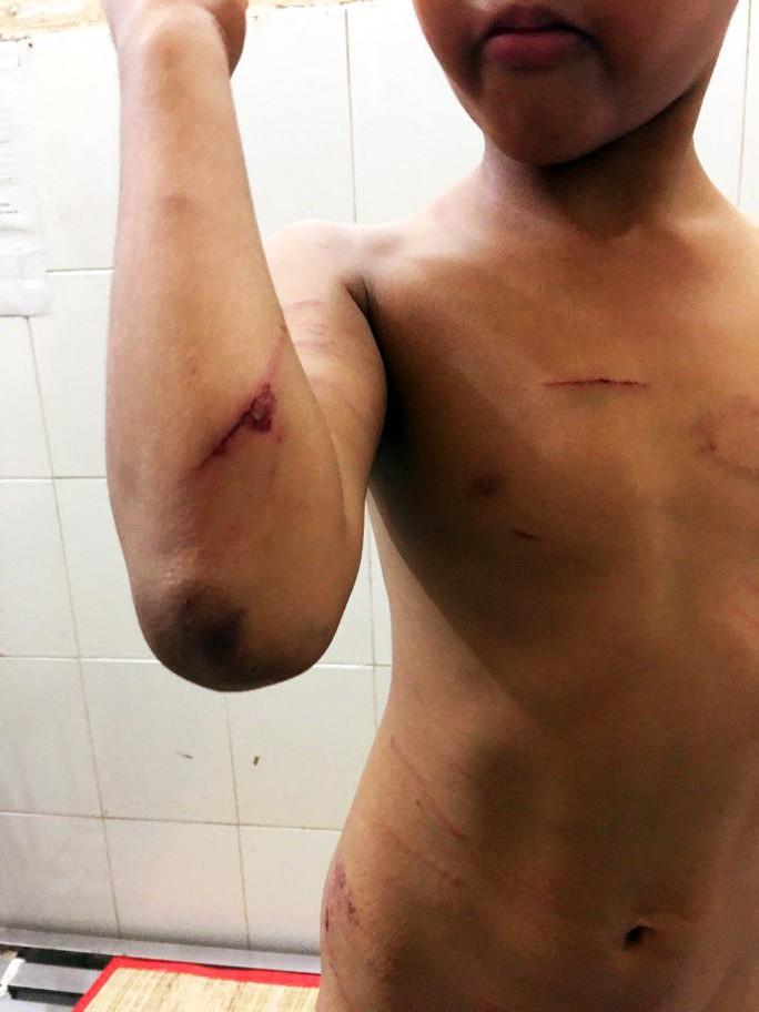 Bé trai bị cha dượng đánh đập hết sức dã man - Ảnh 2.