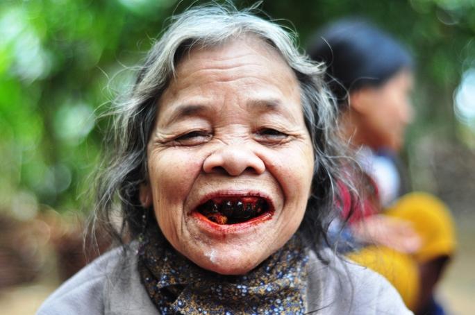 Niềm vui trở lại trên khuôn mặt của người dân vùng bệnh lạ. Ảnh: Tử Trực
