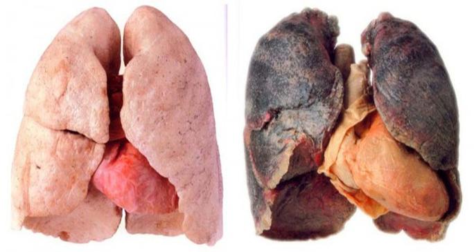 Lá phổi bình thường và phổi tẩm khói thuốc lá