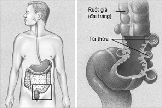 Tự điều trị đau bụng, người đàn ông suýt chết - Ảnh 2.