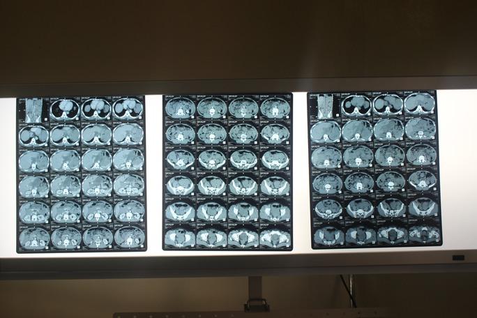 Bóc tách gần 100 khối u cho nam giới 51 tuổi ở Nam Định - Ảnh 2.