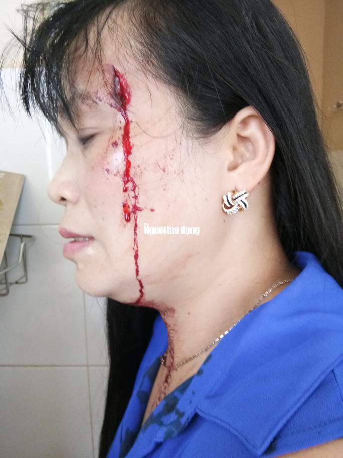 Làm rõ vụ bảo vệ chợ đánh tiểu thương nhập viện  - Ảnh 2.