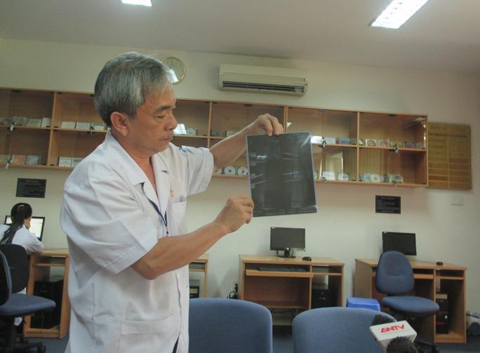 Chuyển viện xuyên biên giới, bé Campuchia được bác sĩ Việt cứu sống - Ảnh 1.
