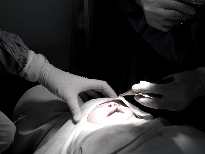 Mời đăng ký phẫu thuật sứt môi – hở hàm ếch miễn phí - Ảnh 1.