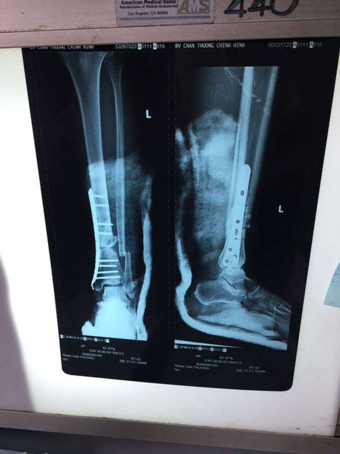 Cứu ca tai nạn suýt đứt lìa chân do máy phát cỏ chém - Ảnh 1.