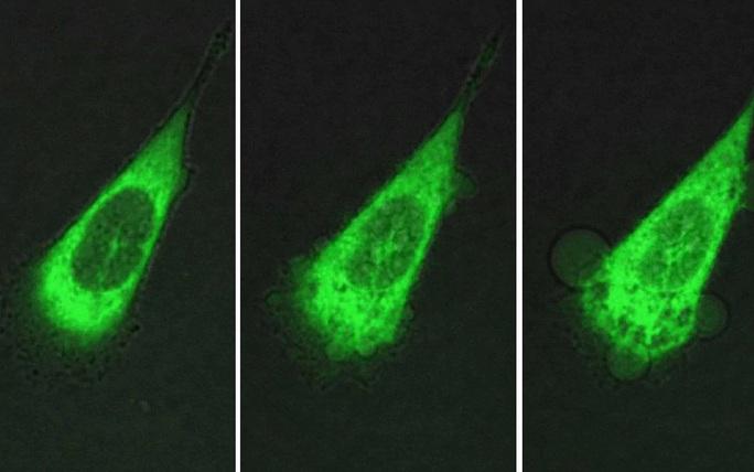 Đưa máy siêu nhỏ vào cơ thể diệt tế bào ung thư - Ảnh 2.
