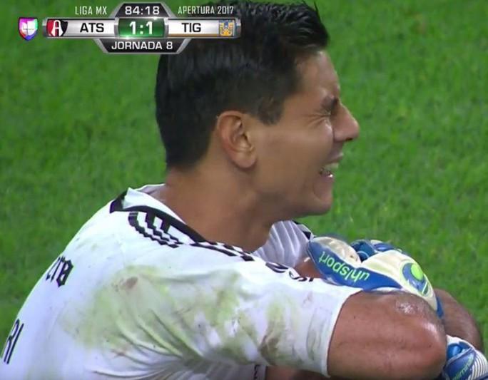 Chấn thương ghê rợn, thủ môn khóc ngất tại sân  - Ảnh 3.