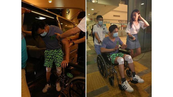 Diễn viên TVB bị xe tông khi đang quay phim - Ảnh 2.