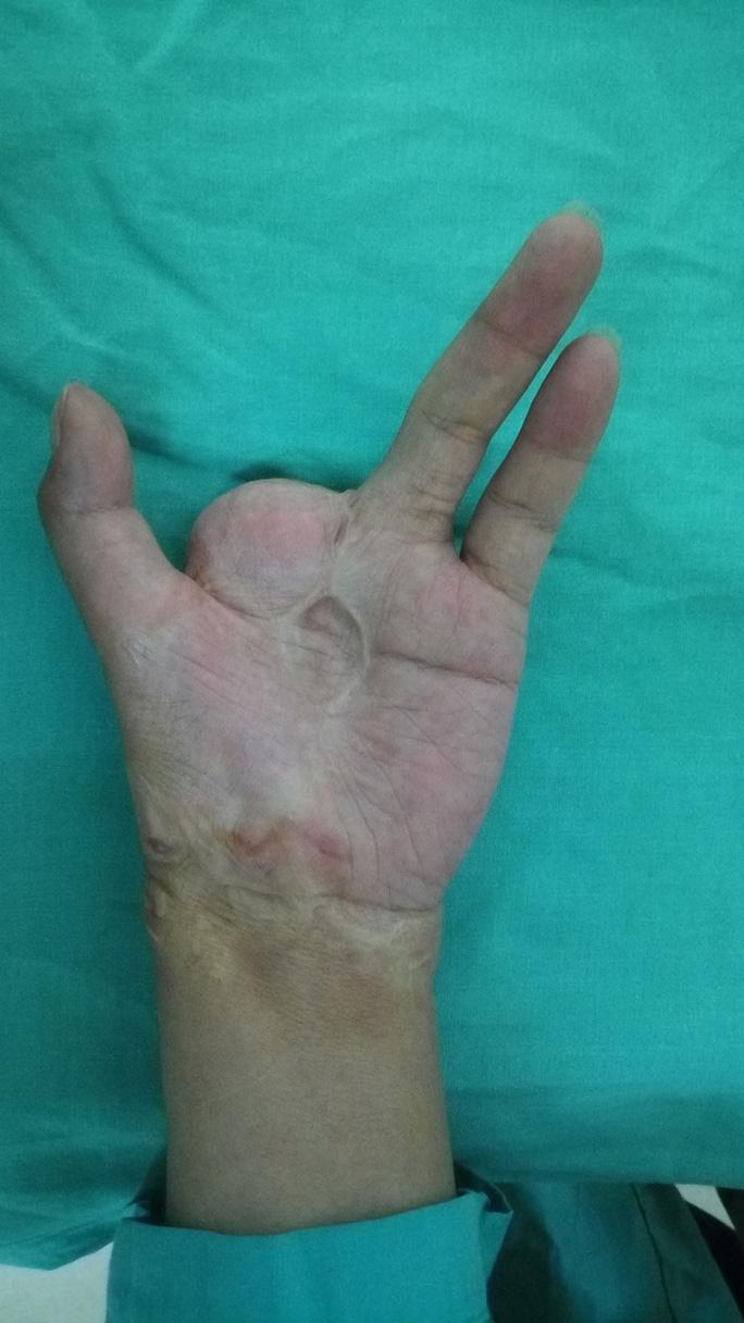 Biến ngón chân thành ngón tay cho cô gái gặp nạn - Ảnh 1.
