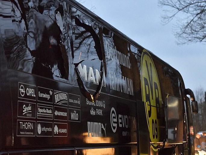 Chiếc xe bus của Dortmund vỡ các cửa kiếng bên phải