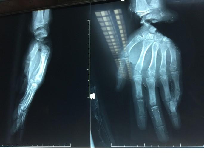Một cậu bé 14 tuổi bị máy cắt lìa bàn tay - Ảnh 1.