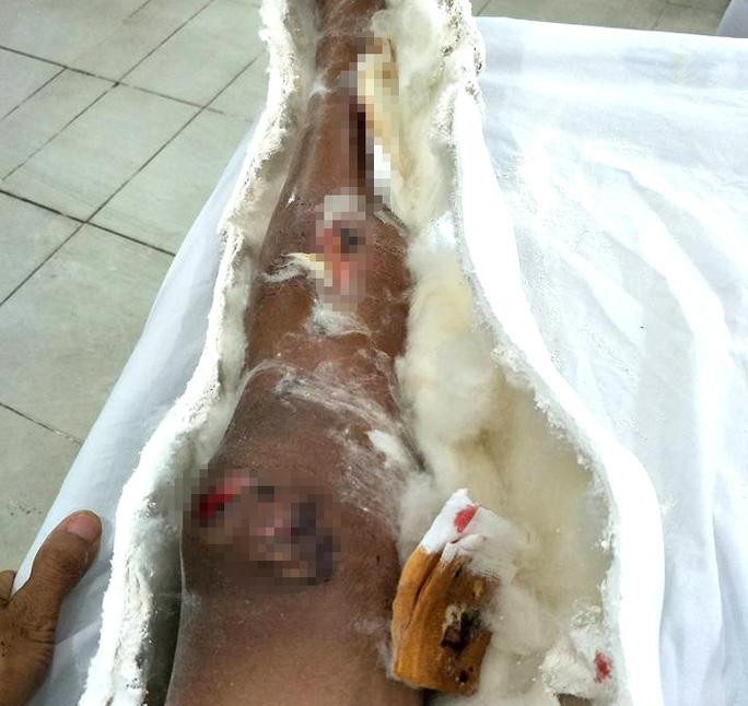 Suýt mất chân vì Bệnh viện Bảo Lộc tắc trách? - Ảnh 2.