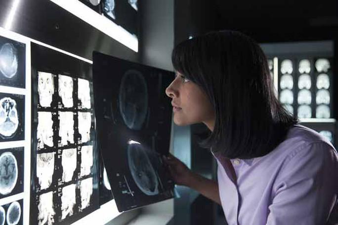IBM đang huấn luyện cỗ máy tính nhận thức Watson đọc hình ảnh y khoa Ảnh: IBM