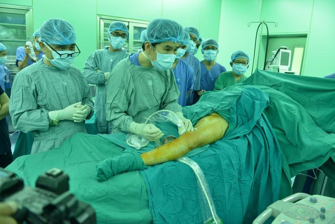 Phương pháp mới điều trị suy tĩnh mạch chỉ 15 phút - Ảnh 1.