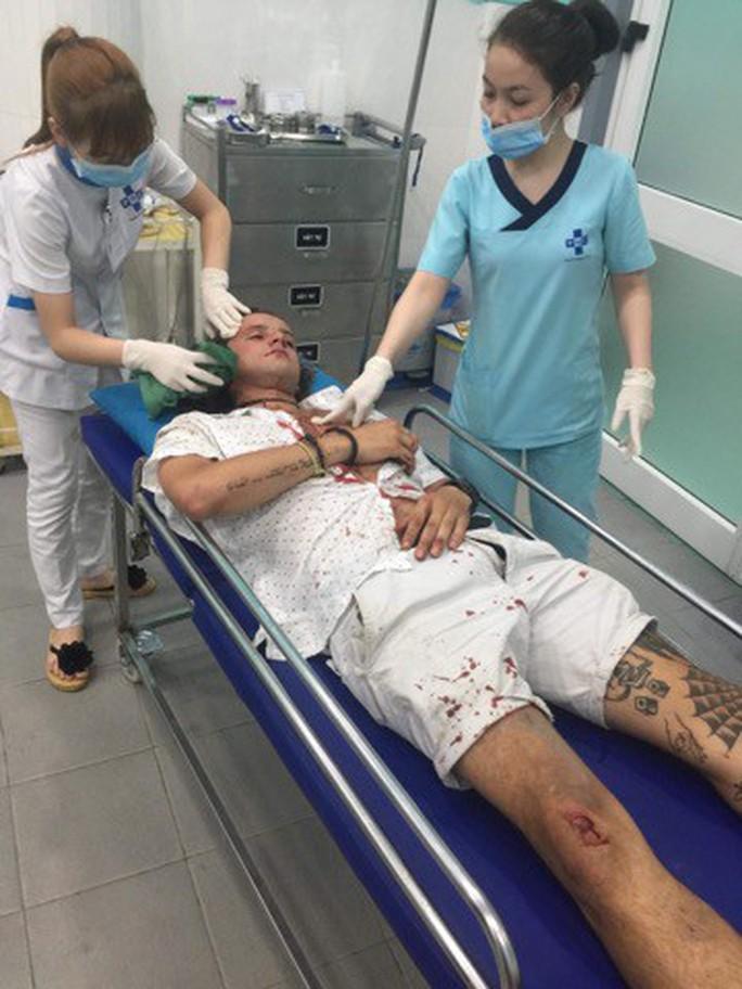 Điều tra vụ du khách người Úc bị nhóm xe ôm Hội An đánh nhập viện - Ảnh 1.